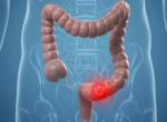 Тромбоз кишечника