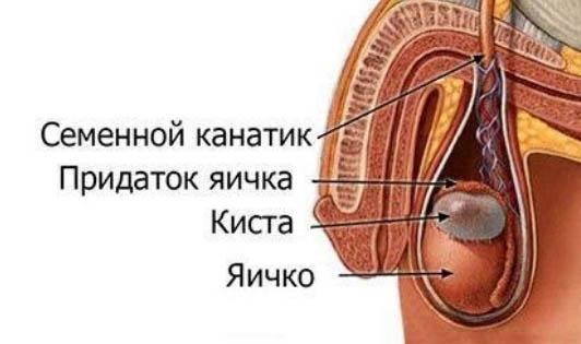 Cперматоцеле (киста яичка у мужчин)