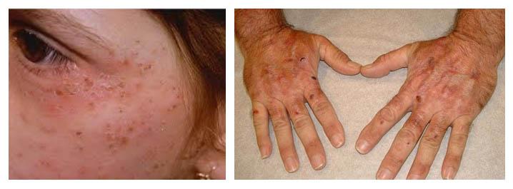 Болезнь Гюнтера (порфирия)