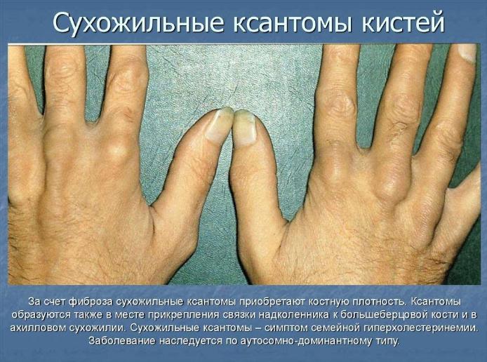 Дислипидемия (гиперлипидемия)