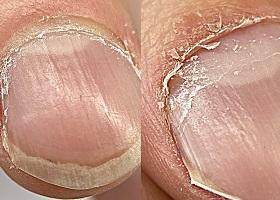 Птеригий на ногтях