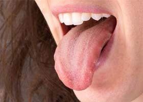 Рак языка