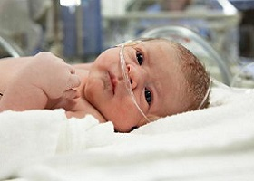 Врожденный стридор у новорожденных
