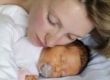 Желтуха у новорожденных
