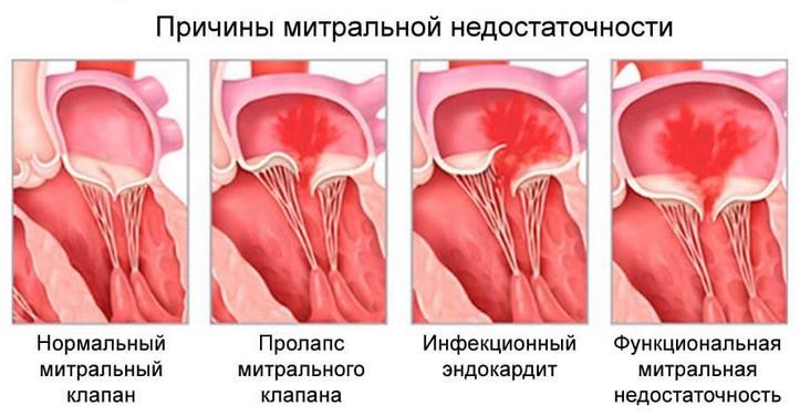 Недостаточность митрального клапана (митральная недостаточность)