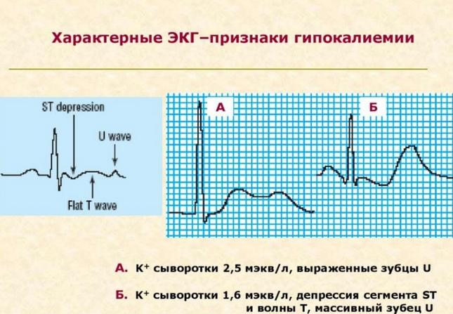Гипокалиемия (нехватка калия в организме)