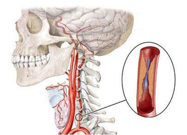 Гипоплазия правой и левой позвоночной артерии